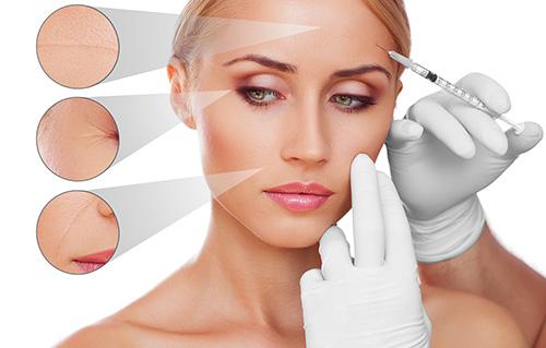 Botox e fillers dermatologiche