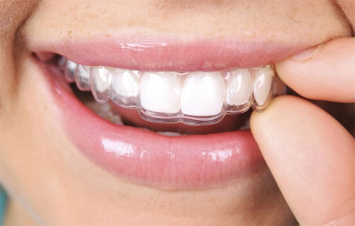 Invisalign and clear correct