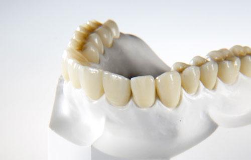 Zirkoninia crowns. Metal-ceramic crowns. Dental bridges